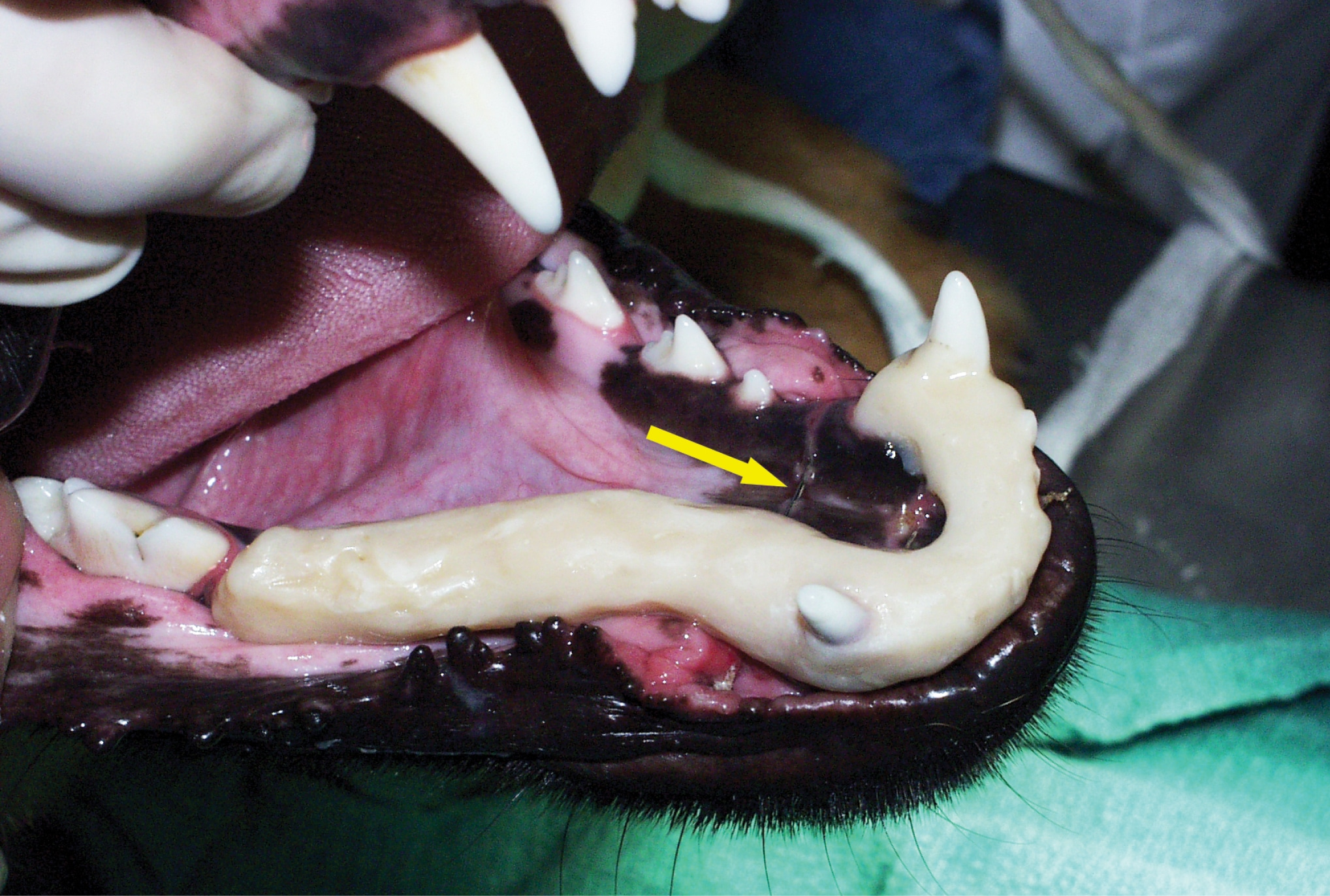 FIGURE 10. Avulsed mandibular canine tooth treated with an acrylic splint. Note the figure-8 wire around the canines (arrow).
