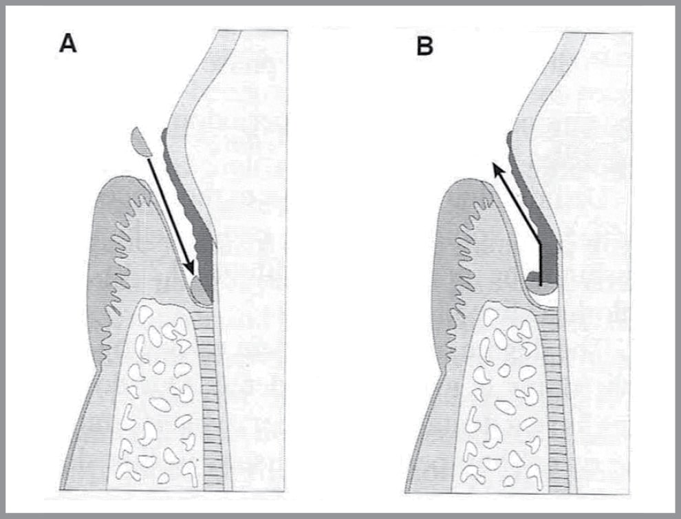 FIGURE 4. In closed root planing, the dental curette is inserted under the gingiva before being angled to remove debris. Image drawn by David Crossley and reproduced with permission from The BSAVA Manual of Small Animal Dentistry, 2nd edition. ©BSAVA