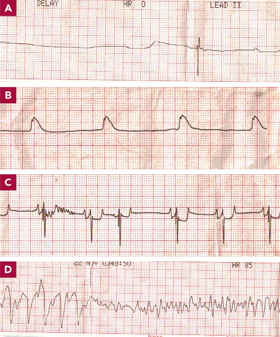 FIGURE 10. Possible ECG tracings during CPR. (A) Asystole, with no regular electrical activity. (B) PEA: no palpable pulses are being produced even though electrical activity is seen. (C) Another example of PEA. (D) Ventricular fibrillation: nonorchestrated discharge of electrical activity leading to ineffective cardiac output. Courtesy of Kristie Garcia, LVT, VTS (Cardiology)