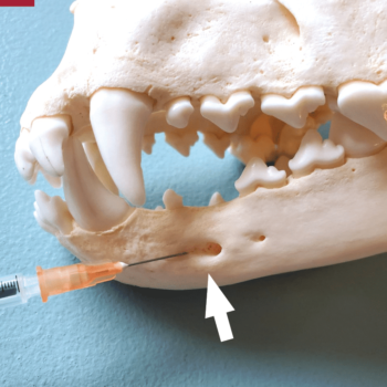 Figure 3. (A) Opening of the middle mental foramen (arrow).