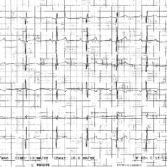 Figure 3. ECG. (A) Normal ECG.