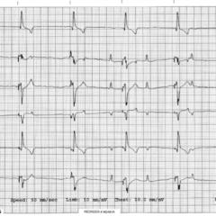 Figure 3. (B) Patient's ECG.
