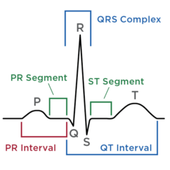 Figure 3. (C) Description of ECG parameters. Adapted from almostadoctor.co.uk