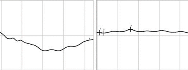 Figure 2. (A) Normal electroretinogram. The first short flat line is the baseline. Where the line starts to curve down is when the light is flashed. The amplitude of lowest point to the baseline is measured as the a-wave. The amplitude of the lowest point to the highest point is measured as the b-wave. Testing for SARDS focuses on the amplitude of the b-wave. (B) Flat ERG. The little waves seen are artifacts caused by movement, most likely the dog's panting.