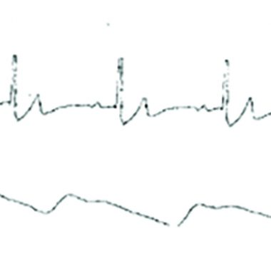 Figure 4. ECG of the patient, taken after surgery, showing normal sinus rhythm.