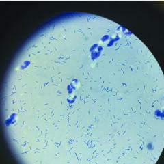 Figure 4. Rod bacteria in a sample of abdominal fluid (40×).